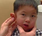 four-year-old-boy-is-given-a-very-lifelike-printed-ear-prosthetic-3
